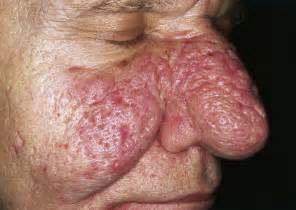 does an skin laser really work picture 5