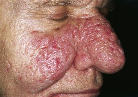 acne and candida picture 5