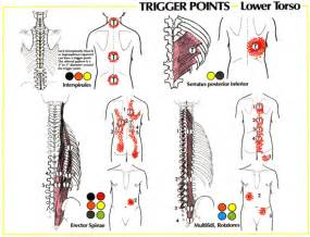 muscle back pain picture 11