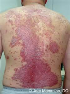 diseases of the skin picture 18