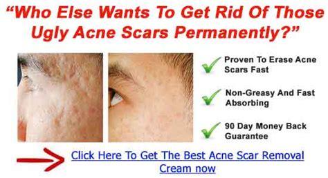 dermefface scar cream price picture 3