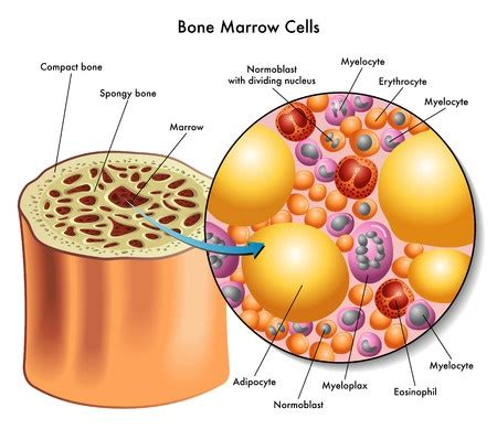 what is bone & bone marrow homeopathic used picture 8