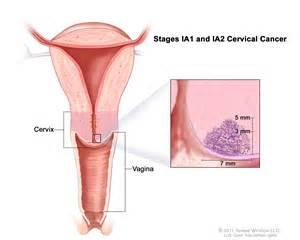 high insertion vergina picture 10