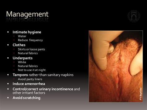 testosterone cream lichen sclerosus picture 1