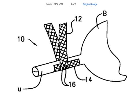 at does a bladder sling look like picture 12