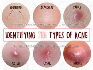acne & m.s. picture 11