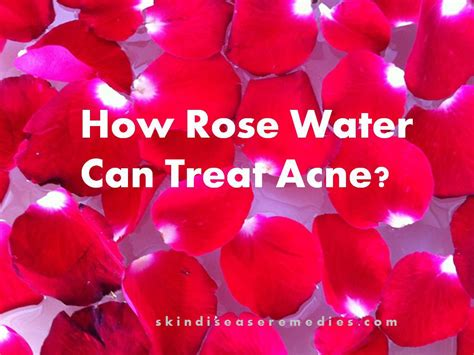 rose water for acne picture 5