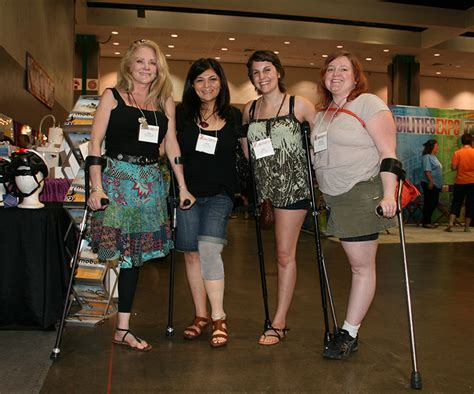 amputee women leg prosthesis picture 7