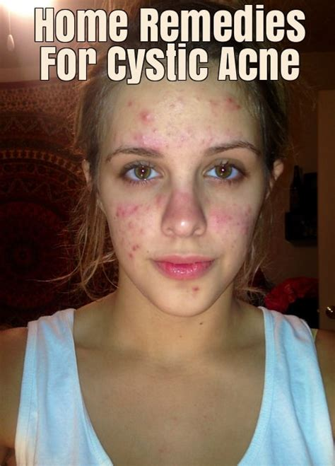 get rid of cystic acne picture 5