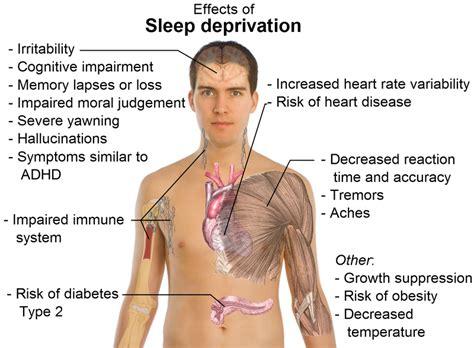 sleep depravation study picture 6