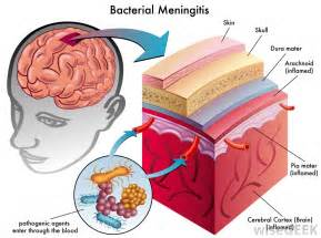 long term effects.of bacterial mengetisis on brain picture 14