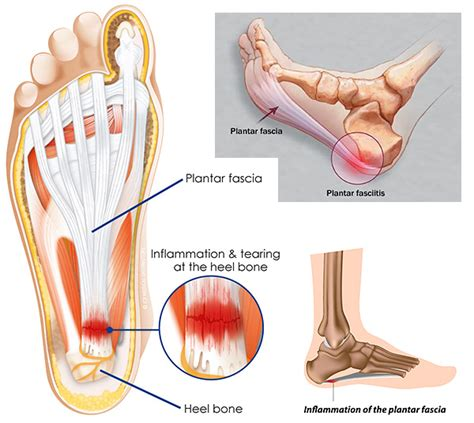 cure for muscle fasciae picture 3