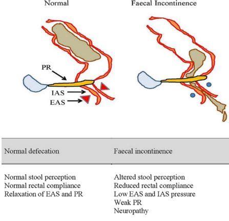 bowel incontinance picture 3