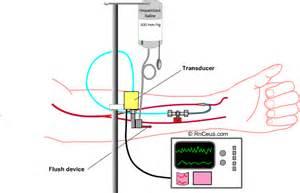 Arterial blood pressure picture 17