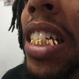 all kinds of gold teeth picture 5