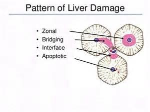 liver transplant pbc aih overlap picture 6