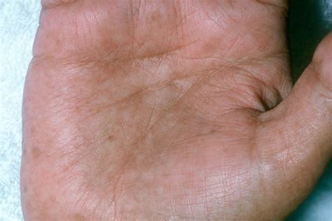 causes of changes of skin condition picture 4