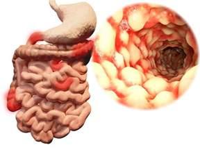 bowel prep for colonoscopy picture 13