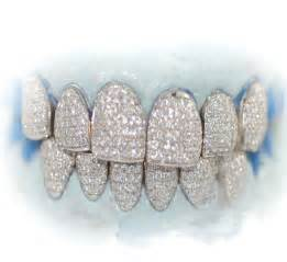 all gold and whitegold teeth picture 6