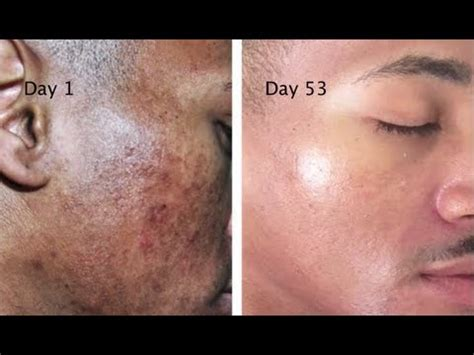 acne caused by shaving picture 7