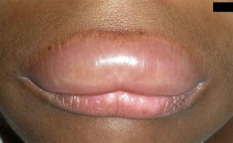 Food allergy lip swollen picture 19