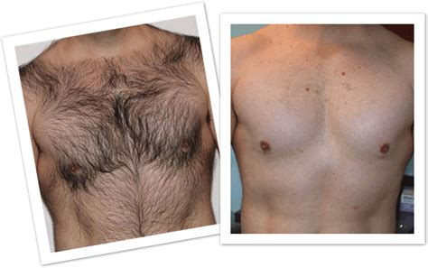 chest hair removal picture 2