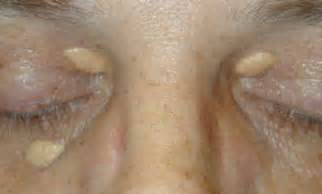 Ocular cholesterol deposits picture 1