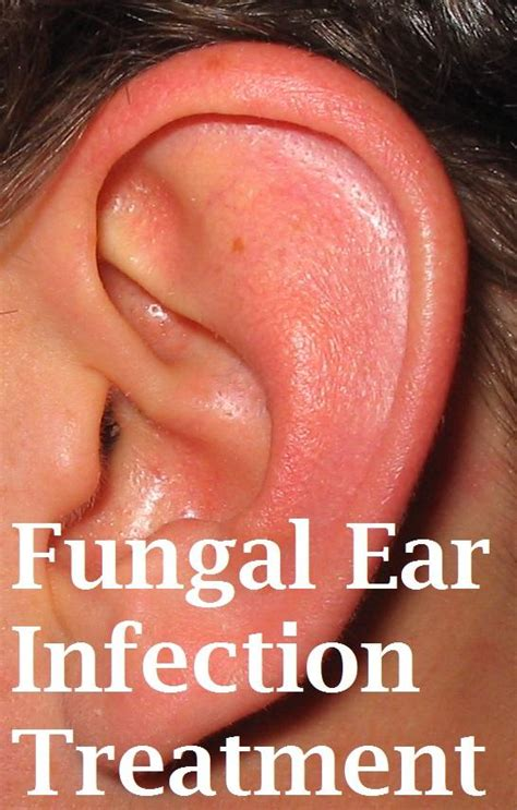 candida clear for yeast infection in ear picture 4