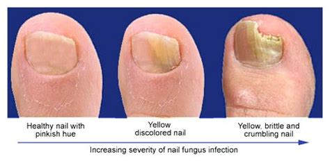 laser nail fungus treatment in ohio picture 13