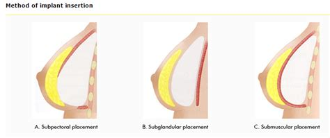 breasts before and after pregnancy pictures picture 3