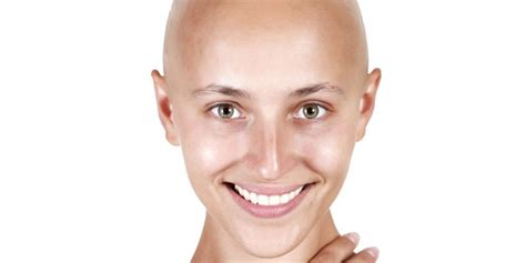chemotherapy hair loss picture 6