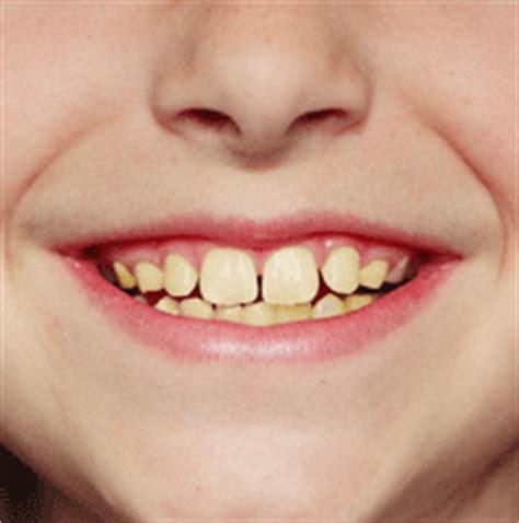 children yellow teeth whitening picture 5