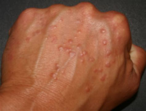 red warts on fingers picture 5