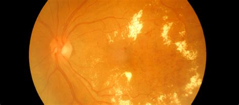 ada diabetic retinopathy picture 7