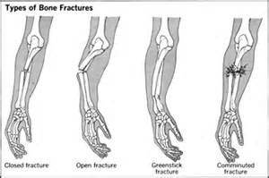 bone and joint injuries picture 1