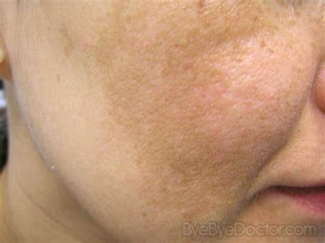 cystic acne, melasma, decreased libido picture 7