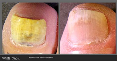 fungal nail laser treatment in louisiana picture 12