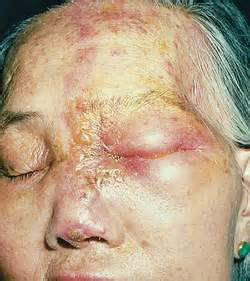 ophthalmic herpes picture 14