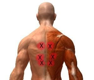 muscle tightening in right side of back picture 1