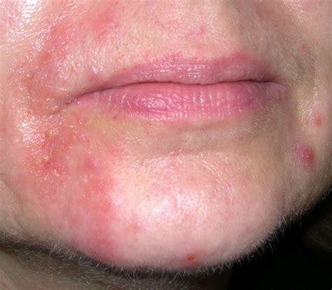 herbal sense rash away soap picture 7