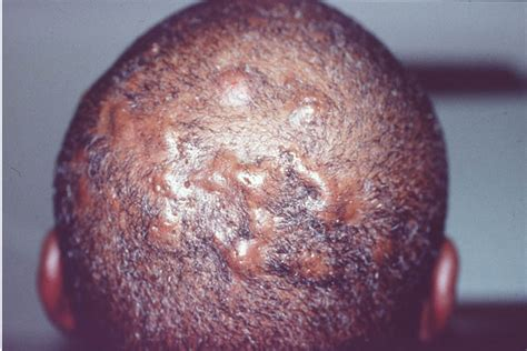 mrsa hair loss boils on scalp picture 1