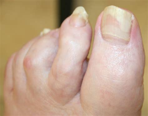 stop fingernails growing picture 10