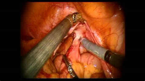 colon resection surgery picture 3