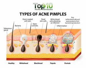 problem for acne pimples whitehead which gel for acne picture 8
