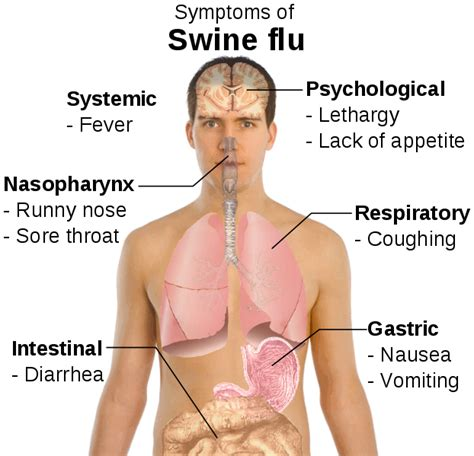 flu symptoms with gastrointestinal symptoms picture 7
