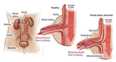 aneurysm high blood pressure picture 6