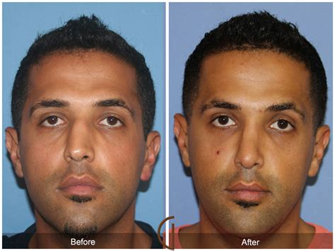 cost of male nose enhancement in the philippines picture 13