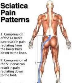 pain relief for sciatica picture 5
