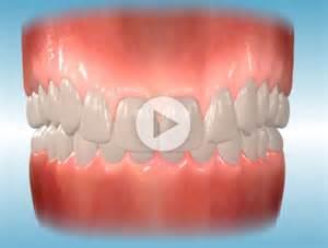 overbite teeth picture 1
