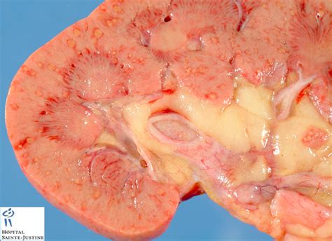 systemic yeast infection picture 3